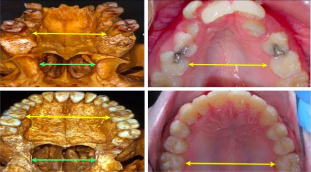 MN Dental Surgery, airway orthopedics