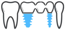 mn dental surgery